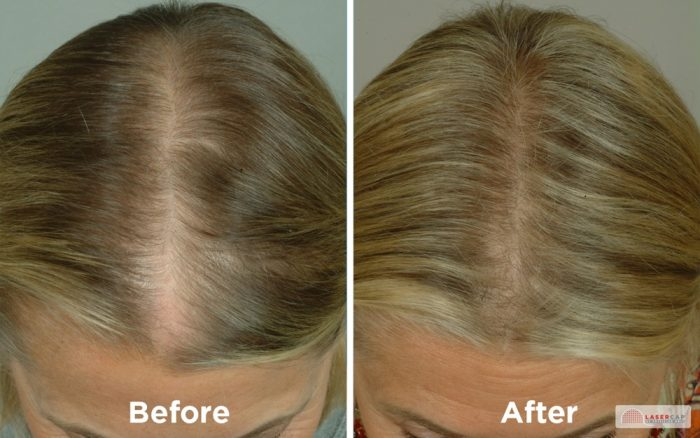 LaserCap Non-Surgical Hair Restoration